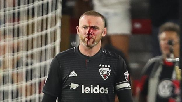 37f7bbaff Wayne Rooney scores first DC United goal and breaks nose in win over  Colorado Rapids - BBC Sport